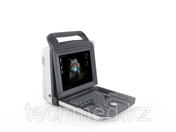 Цифровой стационарный УЗИ-сканер с цветным, энергетическим, импульсным и постоянным допплером ZONCARE Q3, фото 2