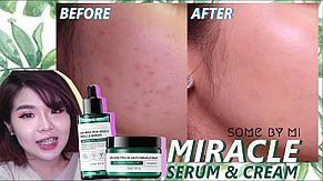 Набор для проблемной кожи с кислотами Some By Mi AC SOS AHA-BHA-PHA 30 Days Miracle AC SOS Kit, фото 2