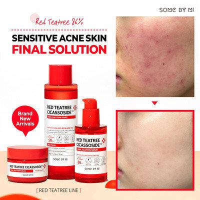 Сыворотка для проблемной кожи Some By Mi Red Tea Tree Cicassoside Final Solution Serum, 50мл, фото 2