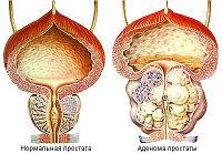 Аденома предстат. железы. Комплекс №4, 3-х месячный курс.