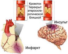 Атеросклероз. Комплекс 2,  3-х месячный курс.