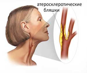 Атеросклероз. Комплекс №3, 3-х месячный курс.