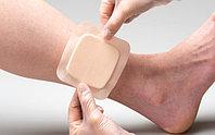 Покрытия и пластыри для лечения ран и пролежней