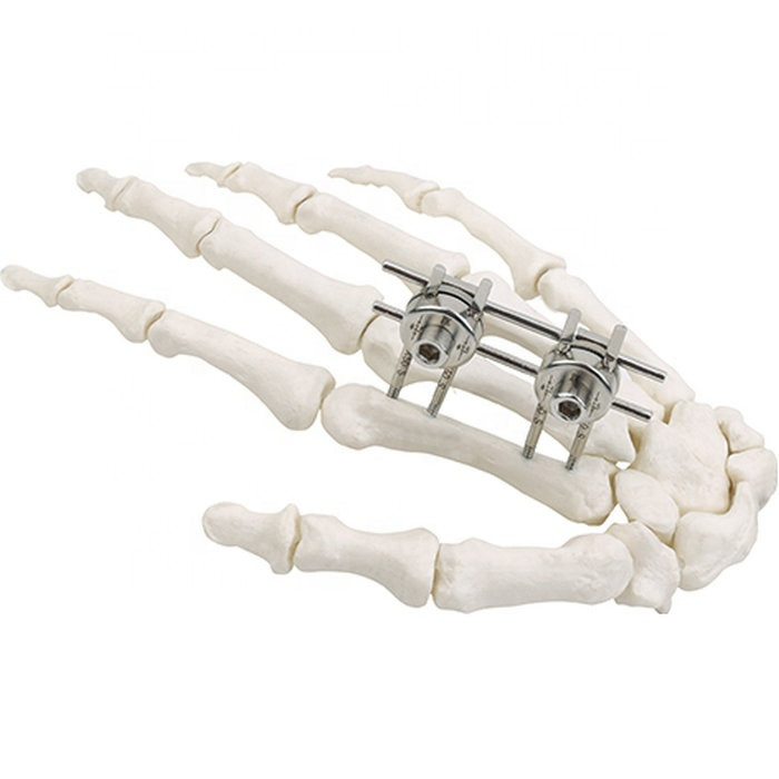 Хирургическая внешний фиксатор имплантат MEDITECH - фото 1