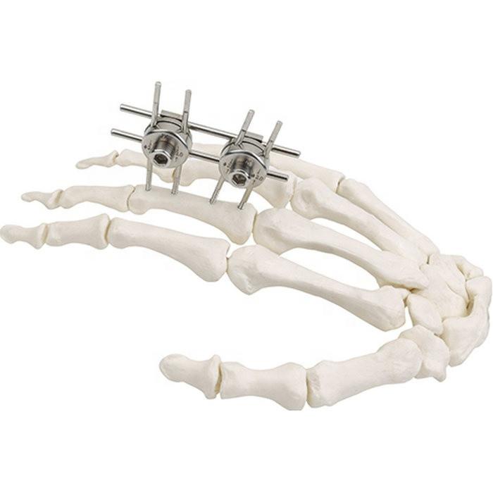 Хирургическая внешний фиксатор имплантат MEDITECH - фото 2