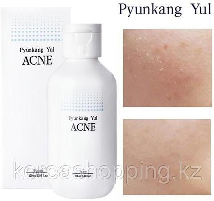 Тонер для проблемной кожи Pyunkang Yul Acne toner, 150 мл, фото 2