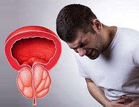 Bigbang (Бигбэнг) средство от простатита и для повышения потенции
