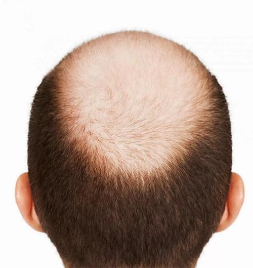 Trichovell (Триховелл) - спрей от выпадения волос