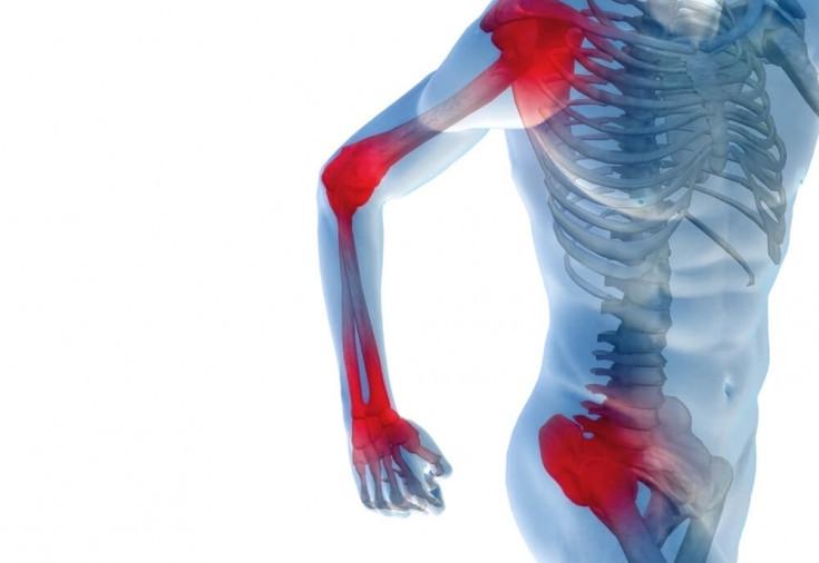Inflamaya gel (Инфламая гель) - крем для восстановления двигательных функций