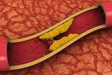 Cholesterol Formula (Холестерол Формула) - капсулы от холестерина