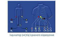 ОБЕРЕГ ОБЕРЕГ-1212 - двенадцатиканальный цифровой электрокардиограф арт. 10665