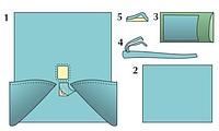 Комплект стерильный операционный одноразовый для гинекологических лапароскопических операций Тип 1