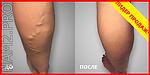 Крем Вариус - избавление от варикоза за 1 курс!, фото 10