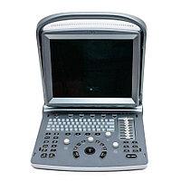 Ультразвуковая система (сканер) Chison ECO 5
