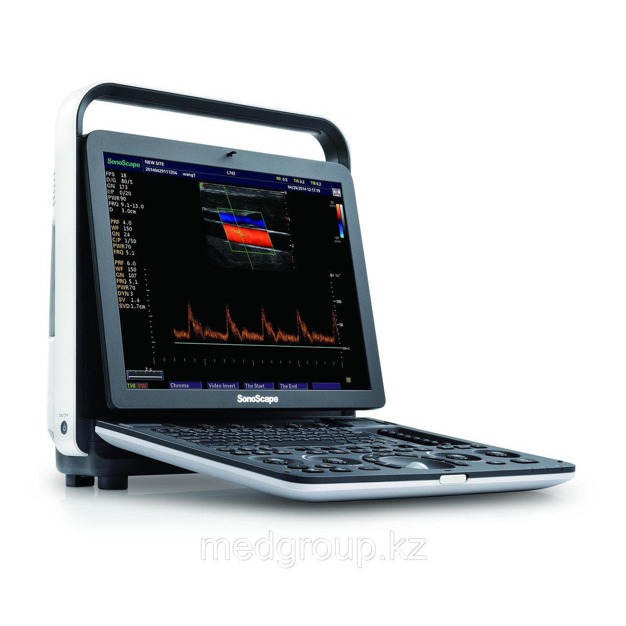 Ультразвуковая система (сканер) SonoScape S9Pro