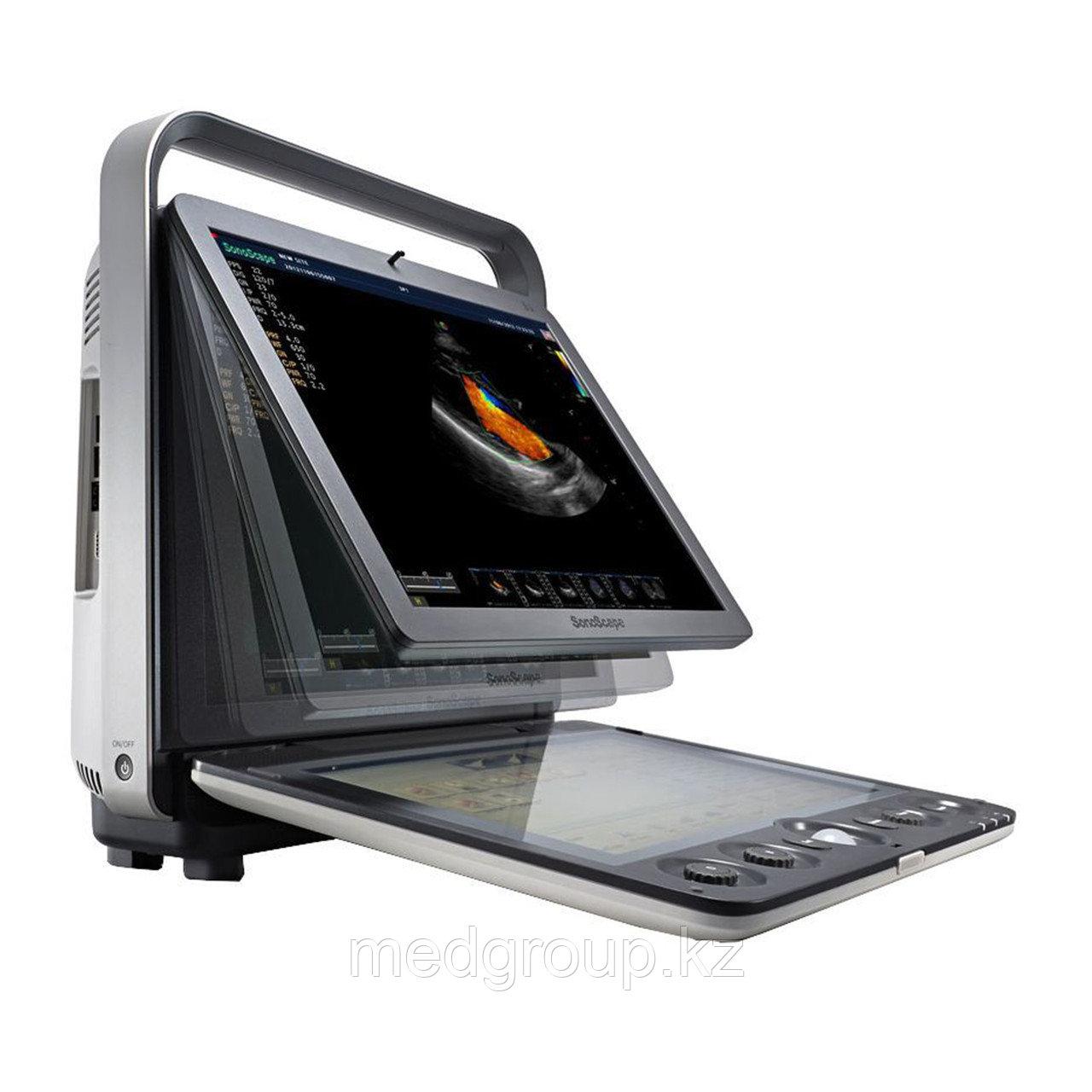 Ультразвуковая система (сканер) SonoScape S9
