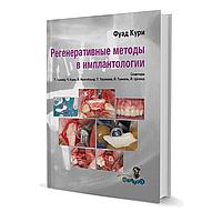 Регенеративные методы в имплантологии. Фуад Кури