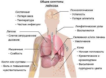 Лейкоз, лимфолейкоз. Комплекс 1, 3-х месячный курс
