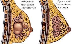 Мастопатия, фиброаденома м. ж. Комплекс №1, 3-х месячный курс