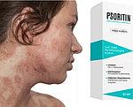 Крем от псориаза быстрого действия Psoritin (Псоритин), фото 2