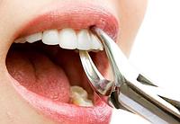 Удаление зуба - простой (1ед) 3К