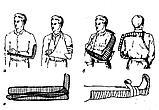 Шина Крамера проволочная для верхних конечностей и нижних (пара), фото 3