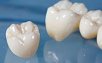 Пломбирование зуба под коронку (1 ед) (хим) 4К