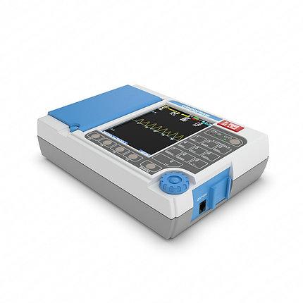 Спирограф микропроцессорный портативный СМП-21/01-Р-Д, фото 2