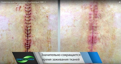 Сшиватель кожи хирургический многоразовый СКМ-1, фото 3
