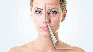 Средства для проблемной и жирной кожи