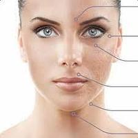 Что такое карбокситерапия лица?