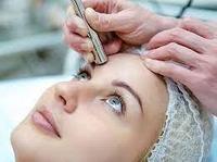 Микродермабразия: все о процедуре механической шлифовки кожи лица