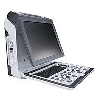 SIUI Apogee 1100 Портативный УЗИ-сканер с цветным допплером, фото 1