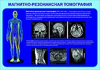 Плакаты ТОМОГРАФИЯ, фото 1
