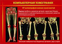 Плакаты КОМПЬЮТЕРНАЯ ТОМОГРАФИЯ, фото 1