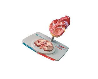 Lipitor Модель Сердца и Мозга