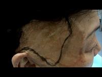 Операции при шрамах и ожогах