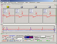 Диагностика трамблёрных систем зажигания
