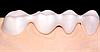 Цифровая облицовочная керамика Lava™ DVS