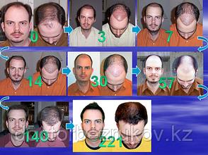 Последовательность роста волос день за днем, после пересадки волос.