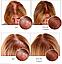 Ultra Hair System — спрей для роста и восстановления волос, фото 4