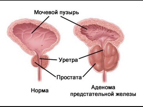 Аденома предстательной железы. Комплекс 4