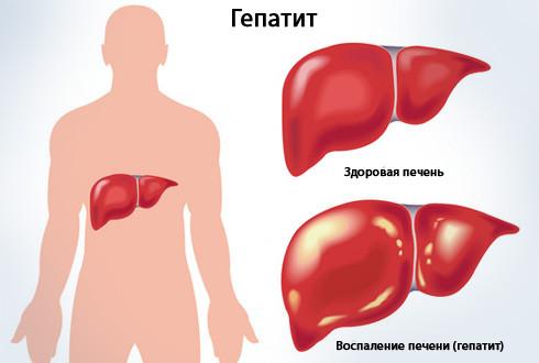 Гепатит. Комплекс 2