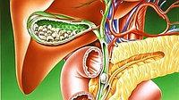 Желчнокаменная болезнь. Комплекс
