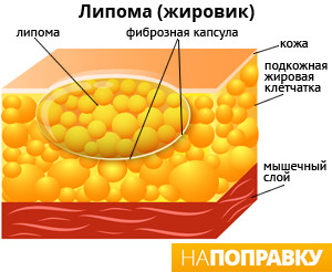 Жировики-липомы. Комплекс