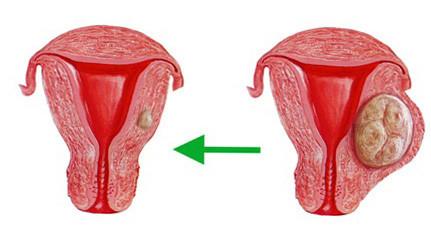 Кистоз матки. Комплекс 2
