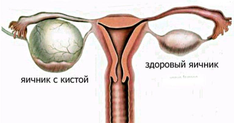 Кистоз яичников. Комплекс 1