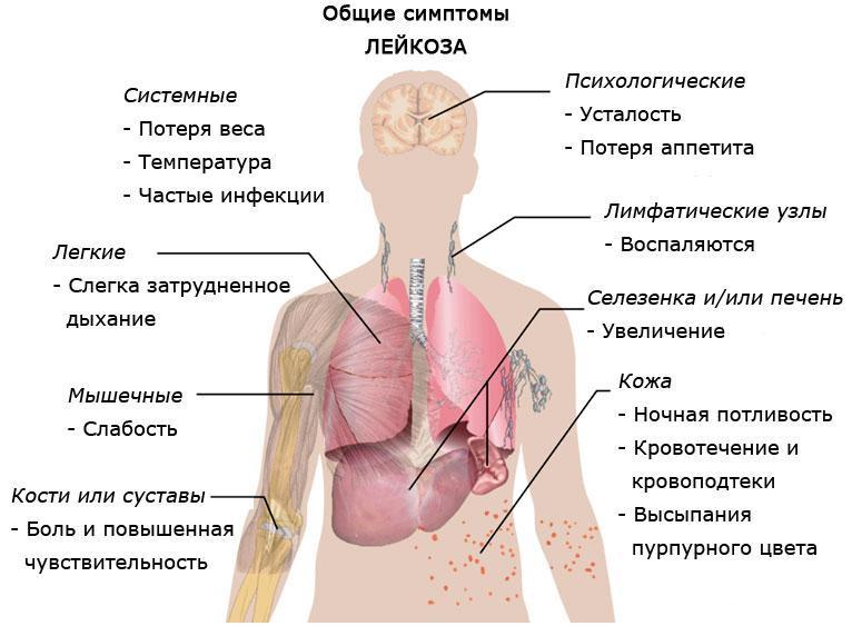 Лейкоз, лимфолейкоз. Комплекс 1