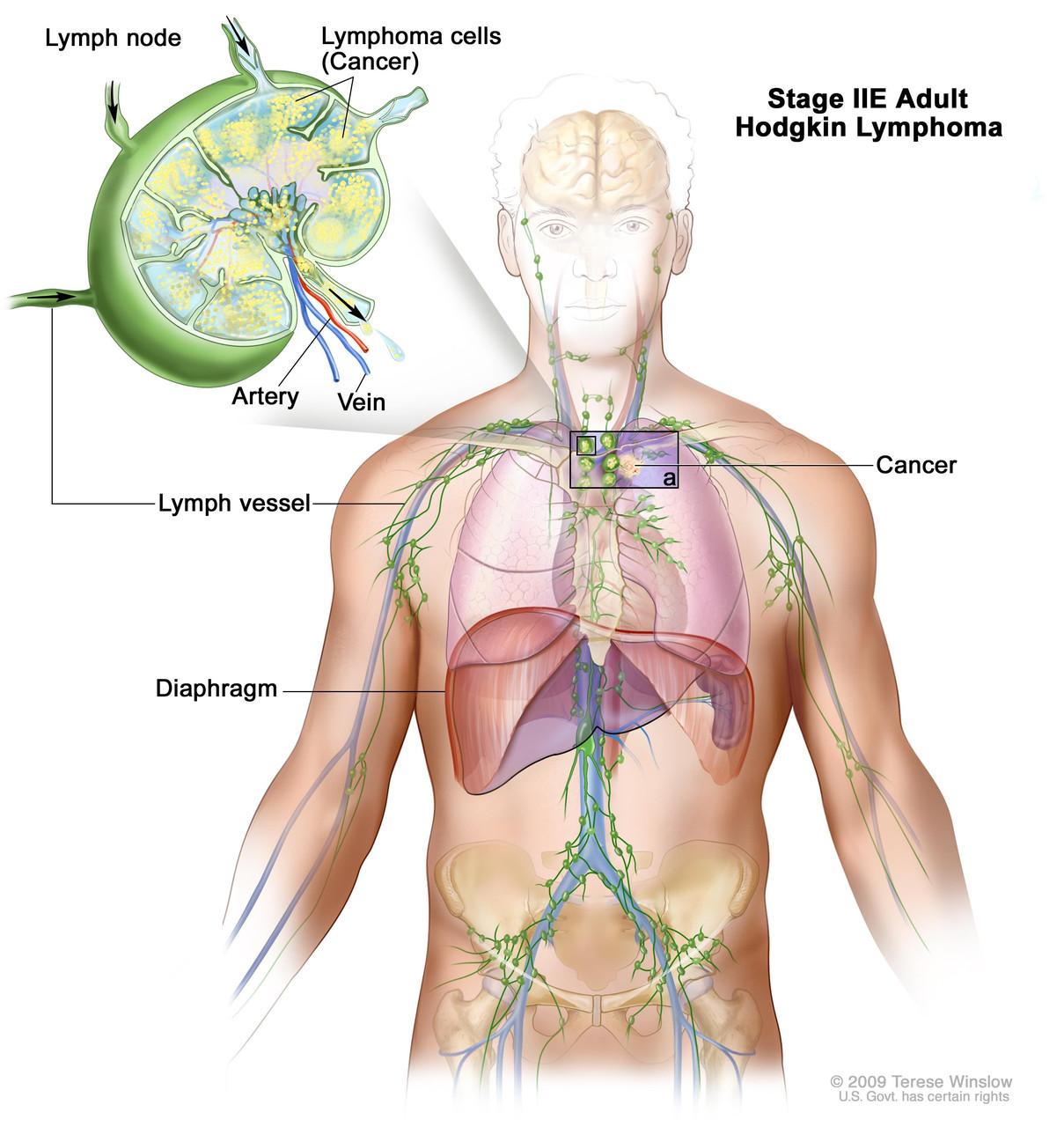 Лимфогранулематоз. Комплекс