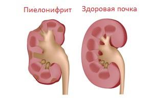 Пиелонефрит. Комплекс 2